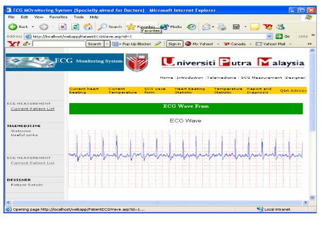 Real-time ECG Waveform.