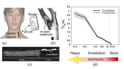 a) Application of UHF RFID Technology to Monitor. (b) The in-stent Restenosis Inside a Carotid Stent. (c)  A First Prototype of a STENTag. (d) Measured Backscattered Power Averagedover Frequency) with Respectto the Variation of the Restenosis grade (right to left).