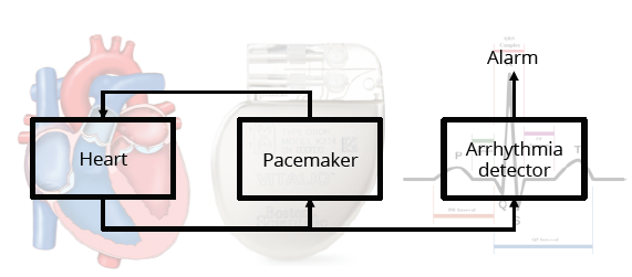 Figure 2: Pacemaker with an Arrhythmia detector.