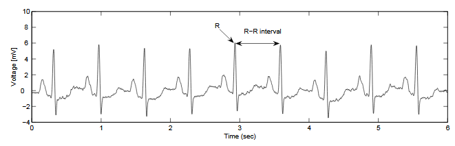 Figure 2.4. Measured ECG-signal. The high peaks is the electrical discharge trigge ring a new contraction of the ventricles