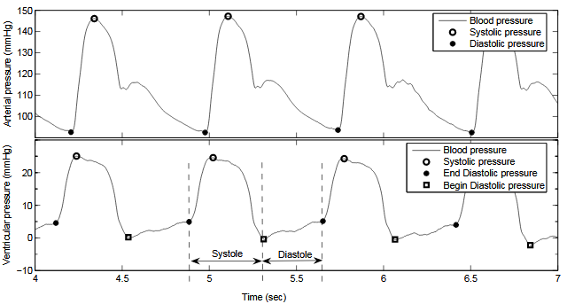 Figure 2.1. Blood pressure waveform. Top : Ventricular blood pressure wave form with systolic and diastolic pressure marked out. Bottom : Arterial pressur e waveform with systolic, begin-diastolic and end-diastolic pressure marked out