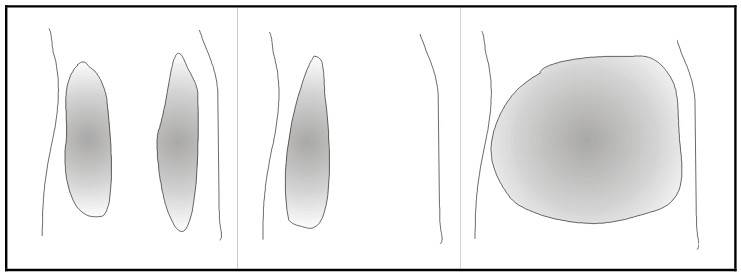 Figure 2.11. Different pond types. Left figure: Two ponds in the ruts. Middle figure: A single pond in the left rut creating asymmetrical friction. Right figure: A large pond across the whole road.