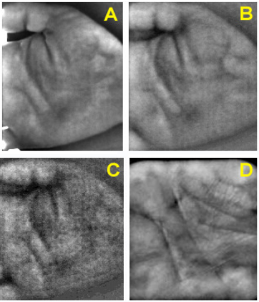 Fig. 3. (A, B, & C) Sample images from scanner 1 illuminated with 850nm IR along with ambient light leaking in through the edges