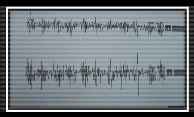 Figure 5.3EMG waveform for Essential Tremor