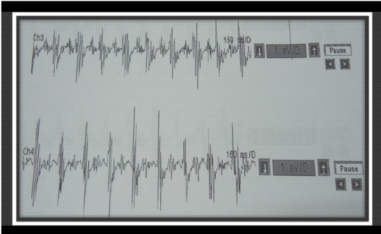 Figure 5.2.EMG waveform for Parkinson's tremor